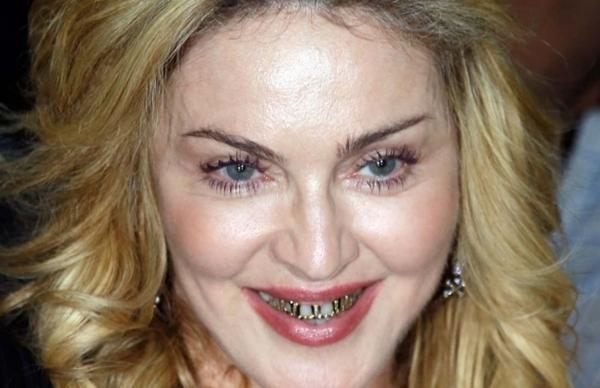 madonna dientes